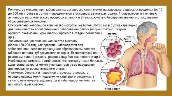 Симптомы кашля с мокротой