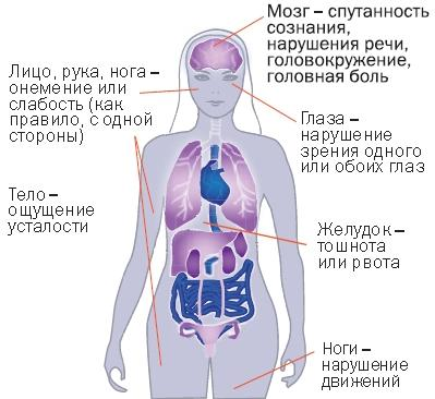 Нарушение мозгового кровообращения: виды, симптомы и лечение