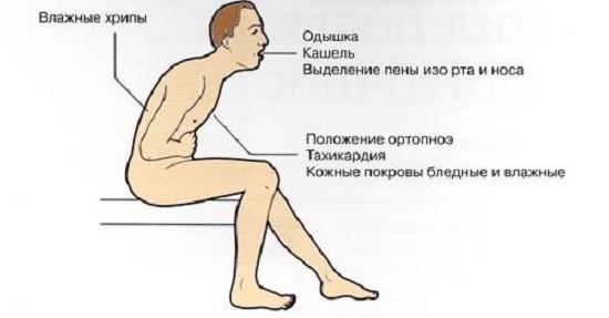 Симптомы отёка лёгких