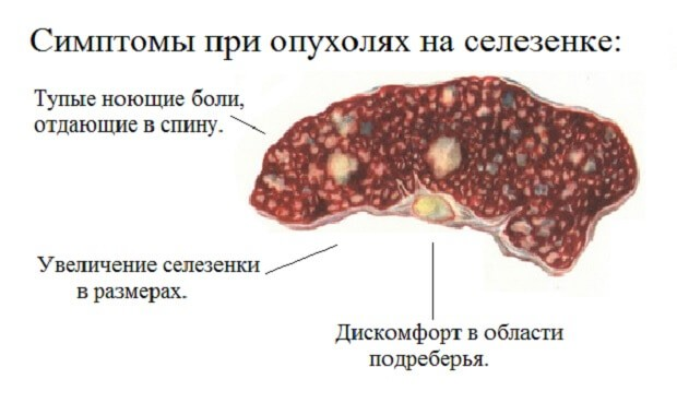 Симптомы при опухолях в селезёнке