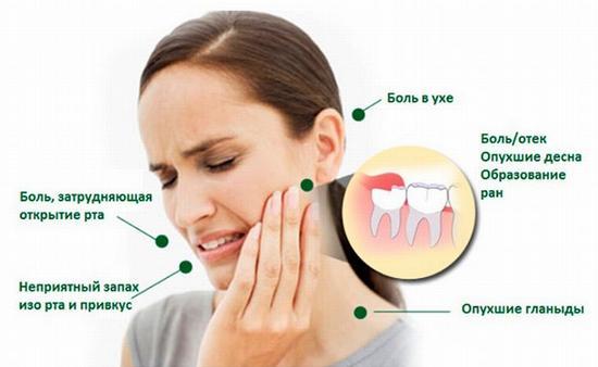 Симптомы, сопровождающие зубную боль