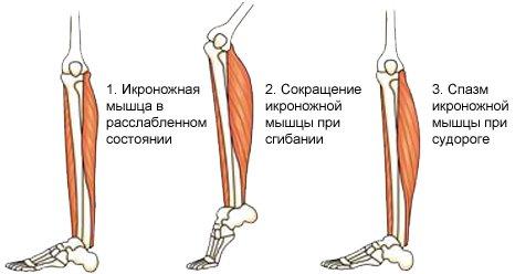 Спазм мышцы при судороге