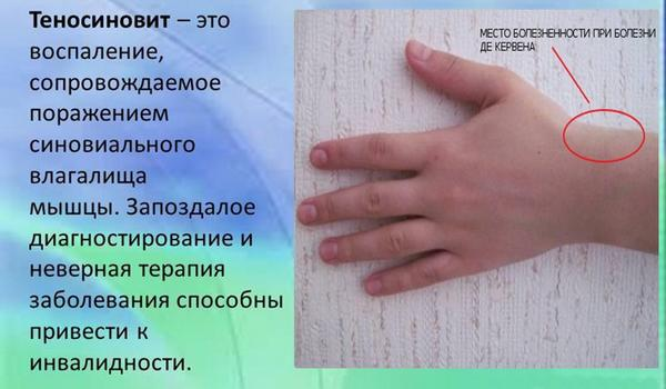 Теносиновит – возможная причина боли в большом пальце