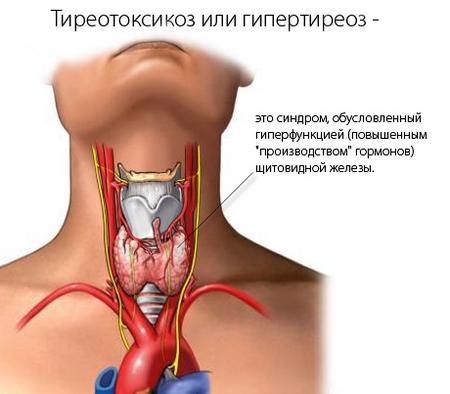 Тиреотоксикоз – возможная причина повышенного потоотделения