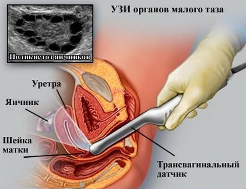 Высыхает смазка в вагине во время долгого секса