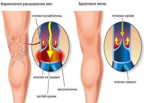 Варикозное расширение вен – возможная причина зуда кожи ног