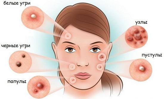 Акне на лице: виды, причины, фото, симптомы и лечение