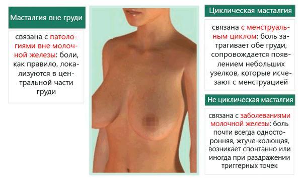 Виды боли в молочных железах