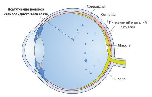 Черные круги перед глазами что это
