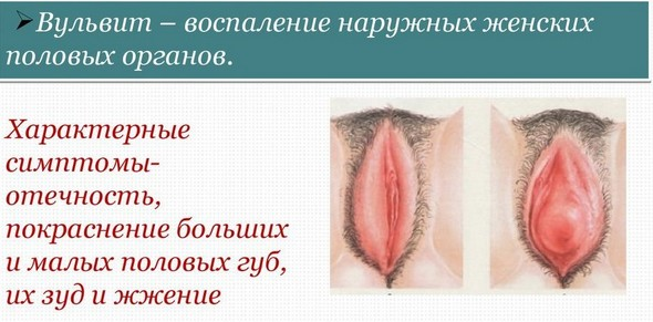 Большие половые губы от частого секса