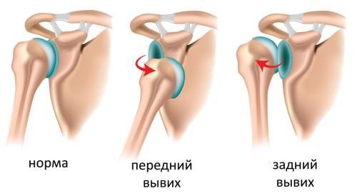 где лечить суставные боли