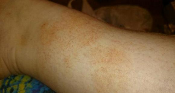 Жёлтые пятна на коже ног